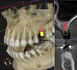 最新歯科用3D・CT(立体画像撮影)