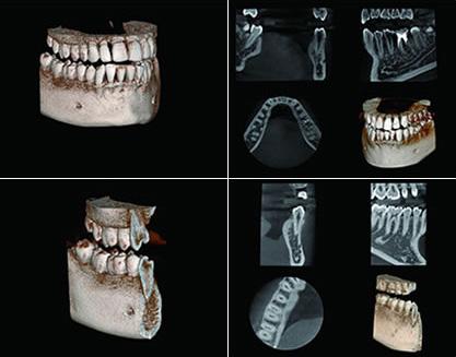 最新歯科用3D・CT(3次元)